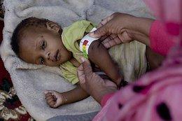 imagen del contenido El fin del hambre y la desnutrición podría llegar en 2025