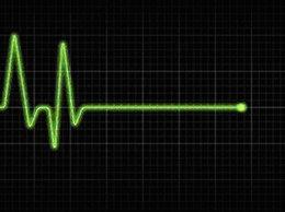 imagen del contenido Cuando el corazón se para