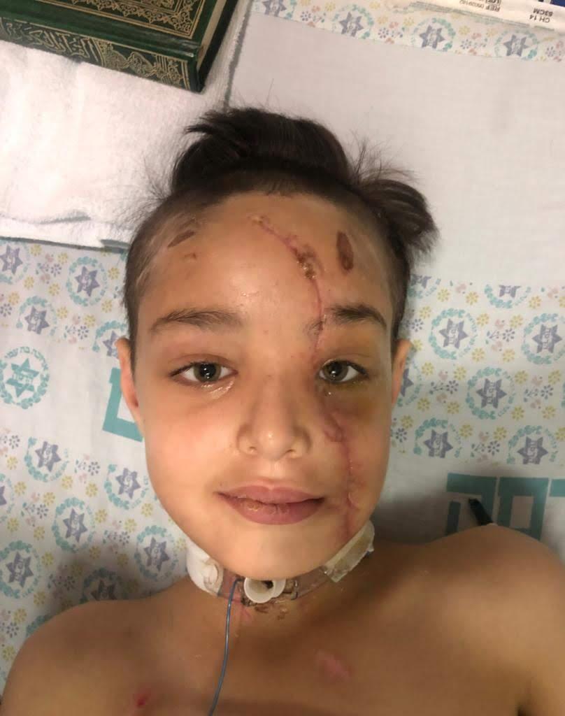 Yusef, de 10 años, ya en buen proceso de recuperación. Un milagro de salvación.